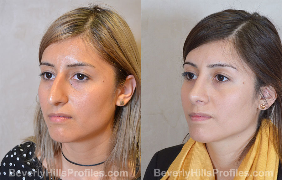 Rhinoplasty Before and After Photo - female, front view