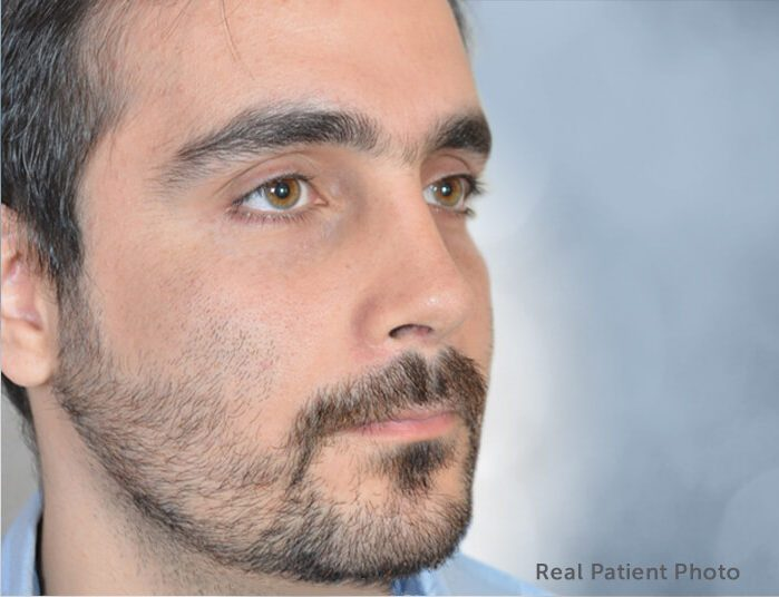 Revision Rhinoplasty. Real Patient Photo - male patient