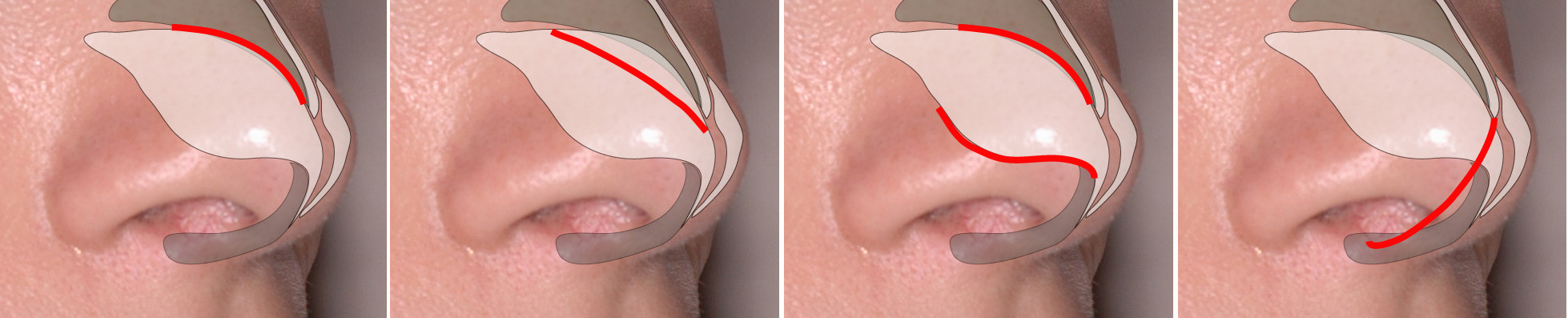 internal incisions (shown in red) - closed rhinoplasty