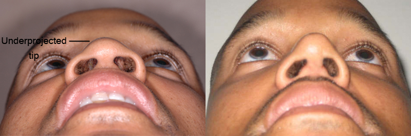 african american before and after 3 months after Nose Jobs - bottom view