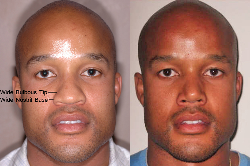 african american before and after 3 months after Nose Jobs - front