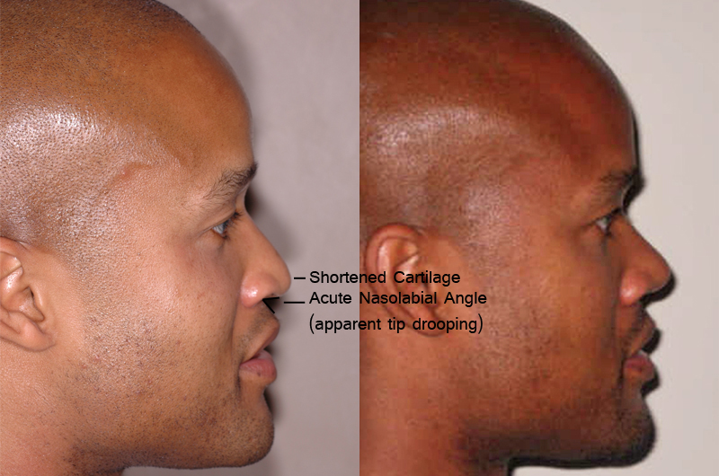african american before and after 3 months after Nose Jobs - profile