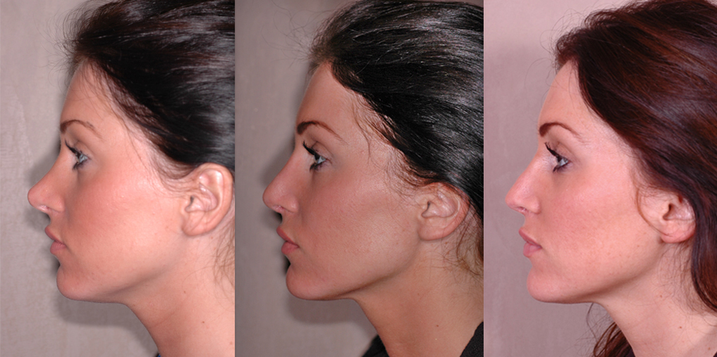 before (left), 10 days (middle), and 4 months (right) after revision rhinoplasty