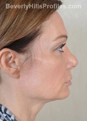 Female face - before Fat Grafting treatment, right side view, patient 1
