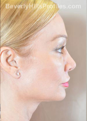 Female face - after Fat Grafting treatment, right side view, patient 1