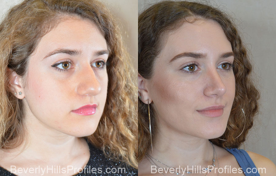 Rhinoplasty Before and After Photos: right side oblique view, female patient 1