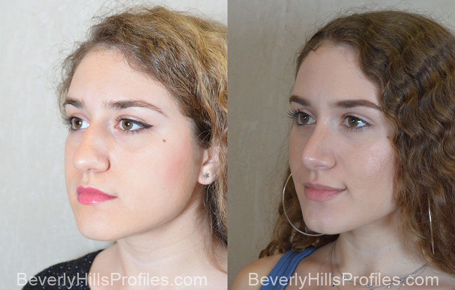 Rhinoplasty Before and After Photos: left side oblique view, female patient 1
