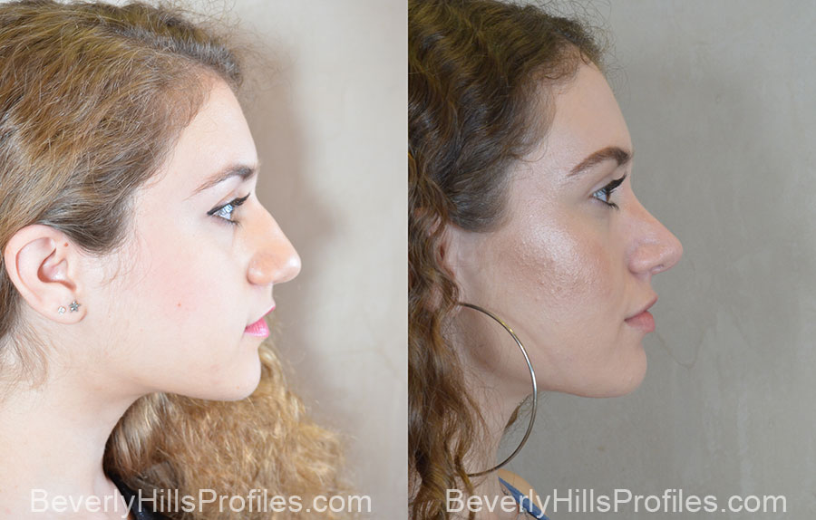 Rhinoplasty Before and After Photos: right side view, female patient 1