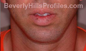 Chin Implants. After Treatment Photo - male, front view, patient 1