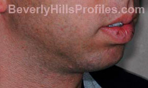 Chin Implants. Before Treatment Photo - male, oblique view, patient 1