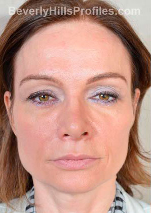 BROWLIFT. Before Treatment Photo - female, front view, patient 2