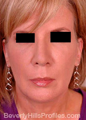 Mini Facelift Surgery After Treatment Photo - female, front view, patient 3