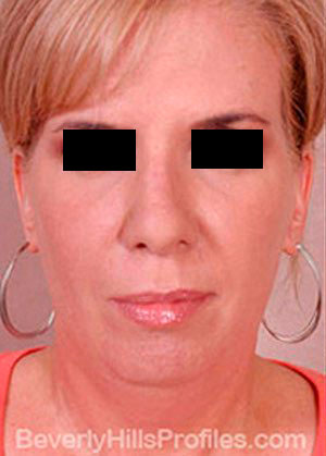 Mini Facelift Surgery Before Treatment Photo - female, front view, patient 3