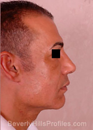 Male face after Revision Facelifts treatment, right side view, patient 2