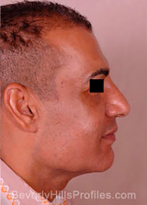 Male face before Revision Facelifts treatment, right side view, patient 2