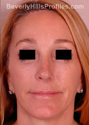 Female face after Revision Facelifts treatment, front view, patient 1