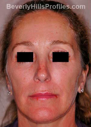 Female face before Revision Facelifts treatment, front view, patient 1