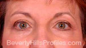 Blepharoplasty After Treatment Photo - female, front view, patient 2