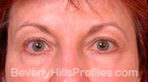 Blepharoplasty Before Treatment Photo - female, front view, patient 2