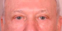 Blepharoplasty After Treatment Photo - male, front view, patient 1