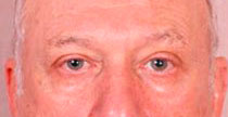 Blepharoplasty Before Treatment Photo - male, front view, patient 1