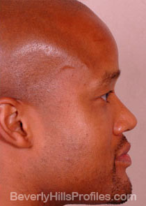 Male face, After Septal Perforation treatment, right side view
