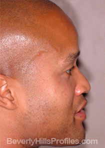 Male face, Before Septal Perforation treatment, right side view
