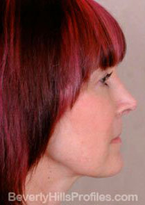 Female face - after Neck lift treatment, neck, right side view, patient 1