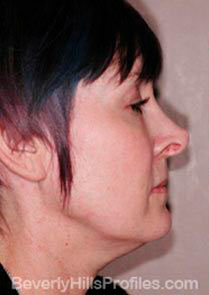 Female face - before Neck lift treatment, neck, right side view, patient 1