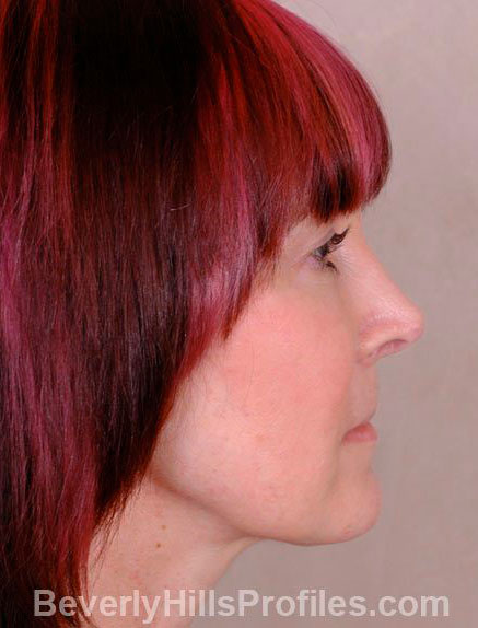 Female fece, after Rhinoplasty Mistakes treatment, right side view - patient 2
