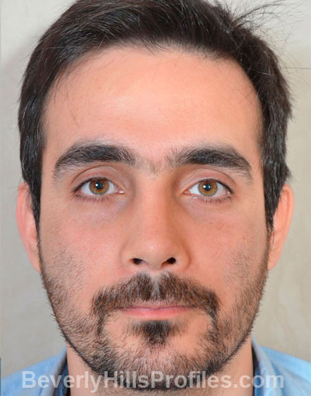 Male fece, after Rhinoplasty Mistakes treatment, front view, patient 1