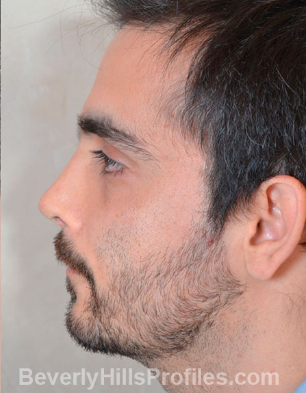 Male fece, after Rhinoplasty Mistakes treatment, left side view, patient 1