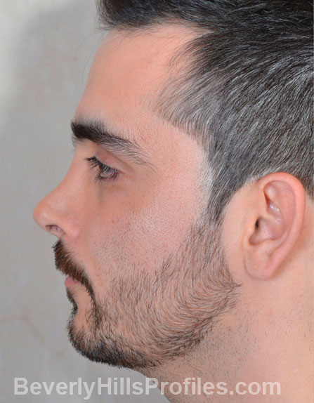 Male fece, before Rhinoplasty Mistakes treatment, left side view, patient 1