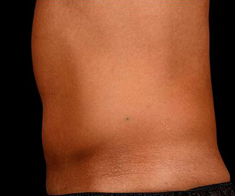 Male tummy - after SculpSure treatment, patient 2 (left side view)