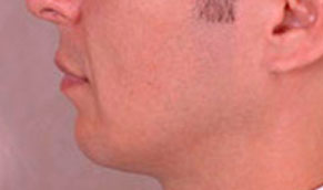 Chin Implants. After Treatment Photo - male, left side view, patient 2