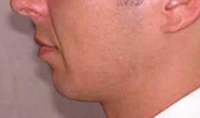 Chin Implants. Before Treatment Photo - male, left side view, patient 2