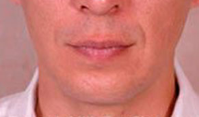 Chin Implants. After Treatment Photo - male, front view, patient 2