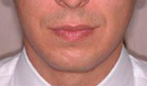 Chin Implants. Before Treatment Photo - male, front view, patient 2