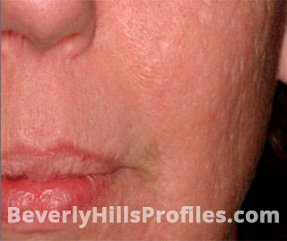 https://beverlyhillsprofiles-10c15.kxcdn.com/wp-content/uploads/2018/10/acne-scars-set-1-1-a.jpg