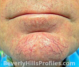 Facial Vessels and Pigments Before Treatment Photo Gallery - male, front view, patient 1