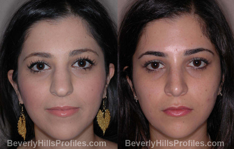 Ethnic Rhinoplasty - Before and After Treatment photos, female face, front view, patient 1