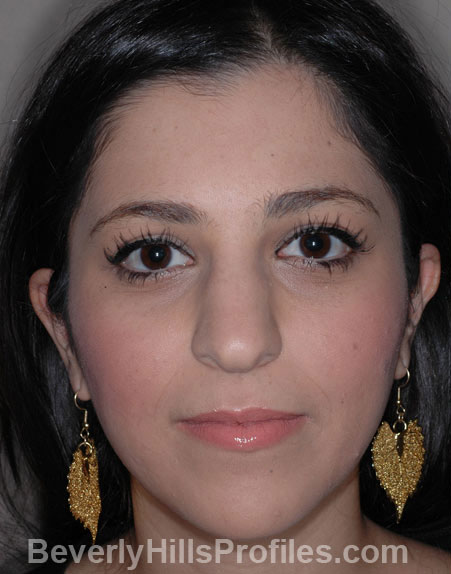 Ethnic Rhinoplasty - Before Treatment photo, female face, front view, patient 1