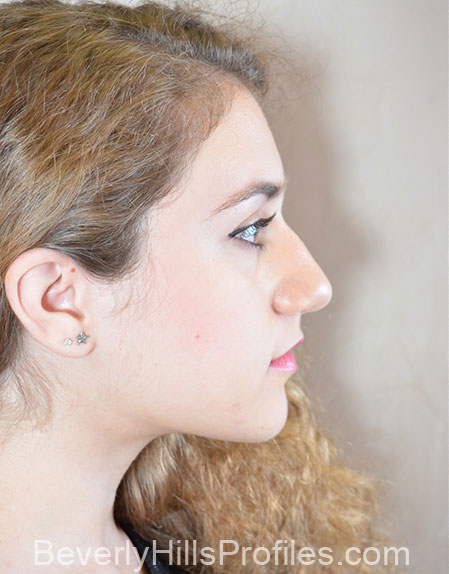 Ethnic Rhinoplasty Before Treatment Photo - female, right side view, patient 1