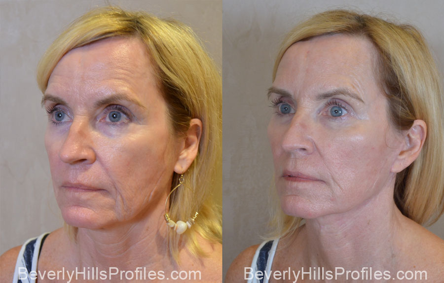 Facelift Before and After Photo Gallery - female, oblique view, patient 13