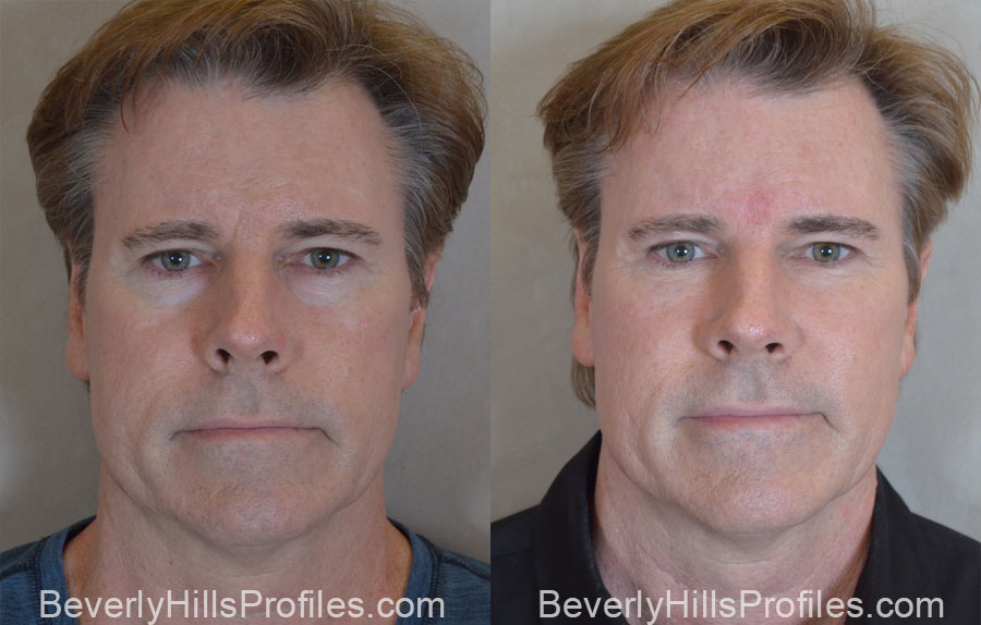 Facial Fat Transfer Before and After Photo Gallery - male, front view,patient 17