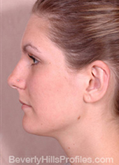 Otoplasty After - female, side view
