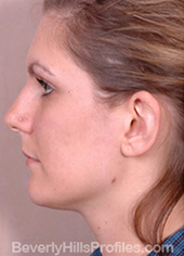 Otoplasty After Photo - female, side view
