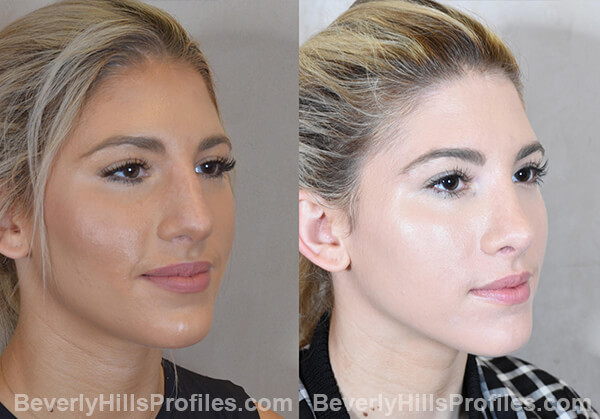 Nose Job Before and After Photo - female, oblique view